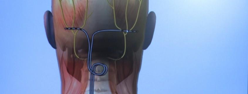 neurostimulaie-neurostimulator